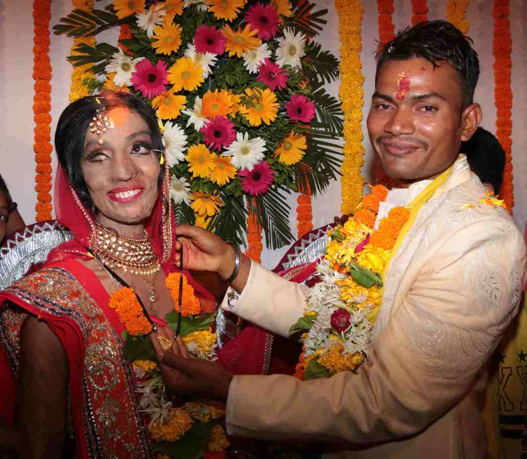 YES SHE CAN: Wedding ceremony of acid attack survivor Lalita Bansi and Rahul Kumar, a CCTV operator, in Mumbai, UNI