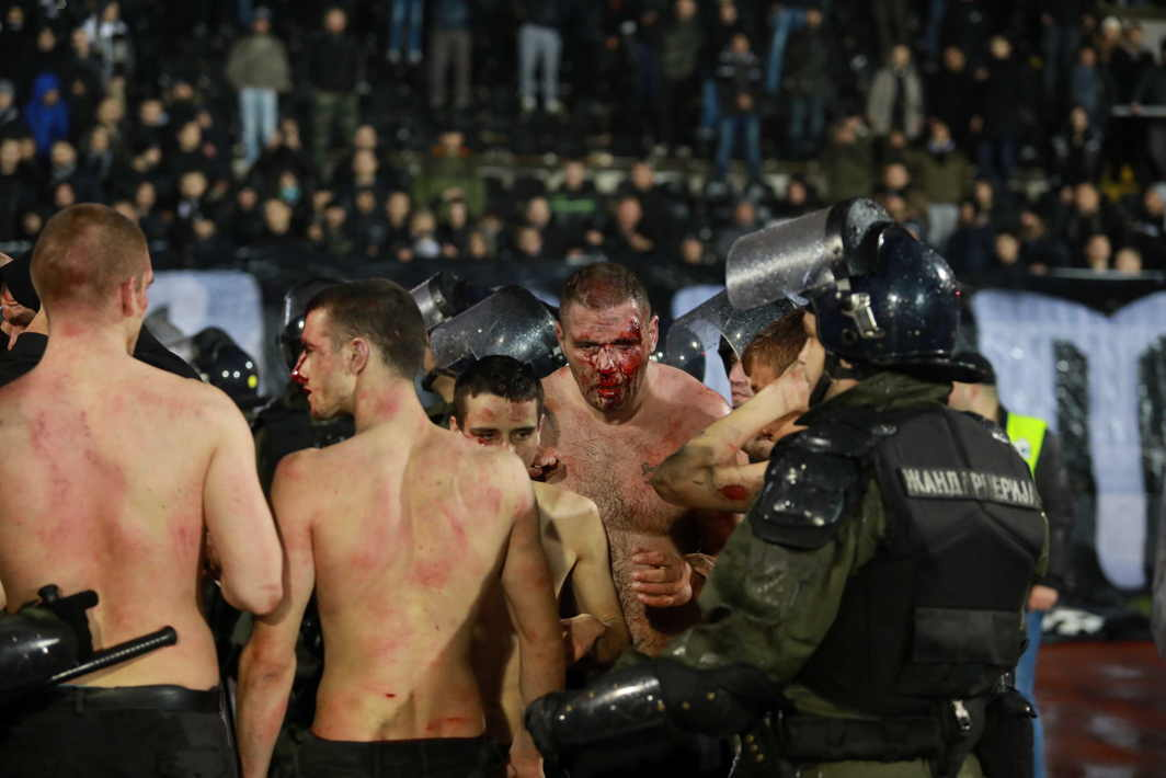 BARMY ARMIES: Police escort soccer fans injured during the fights at a match between Red Star and Partizan in Belgrade, Serbia, Reuters/UNI